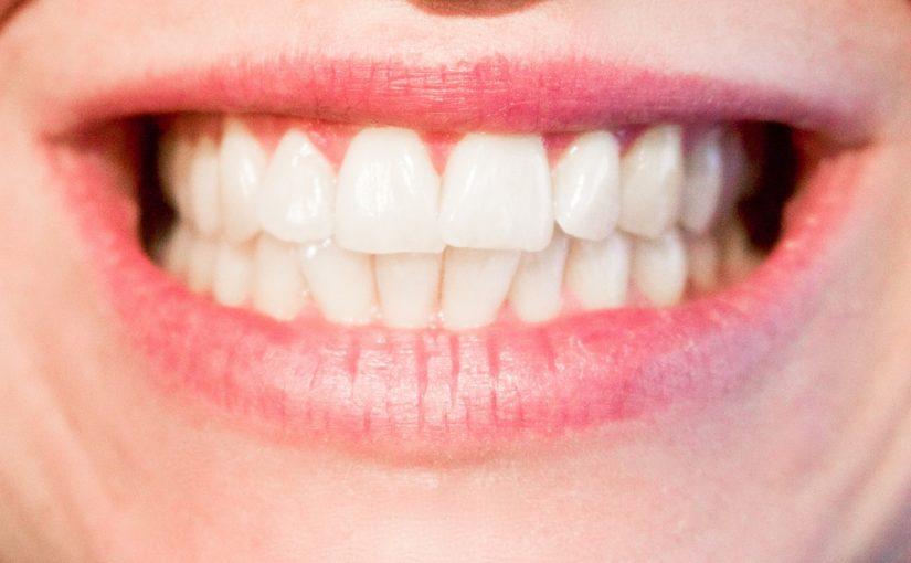 Dzisiejsza technika używana w salonach stomatologii estetycznej być może sprawić, że odbierzemy śliczny uśmiech.