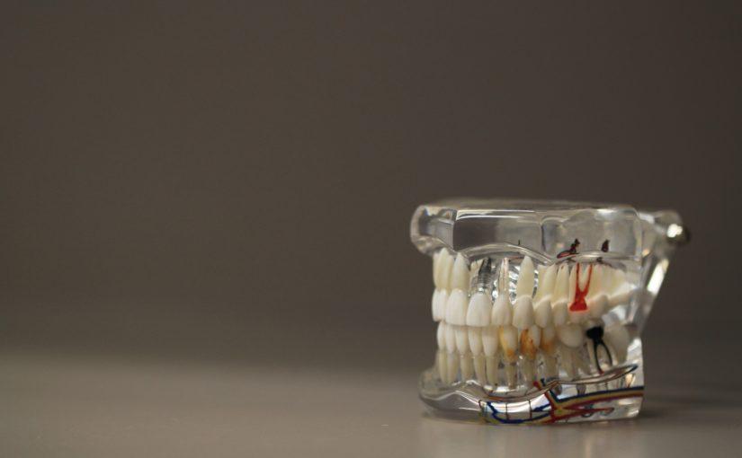 Zły sposób odżywiania się to większe ubytki w ustach natomiast również ich utratę